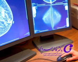 سرطان در زنان و روش های تشخیص سرطان لوله فالوپ